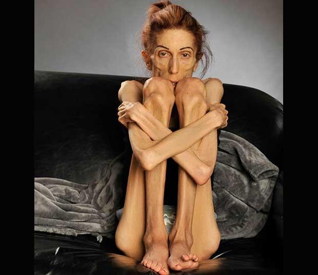 /index.php/curiosidades-en-la-red/19921/el-emotivo-video-de-rachel-farrokh-para-vencer-la-anorexia