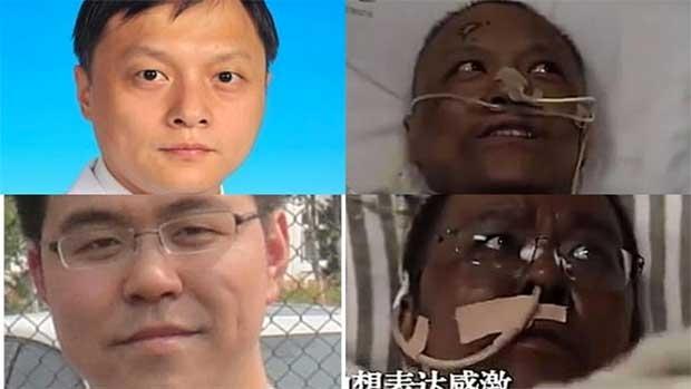/index.php/curiosidades-en-la-red/54092/por-que-dos-medicos-chinos-se-han-vuelto-negros-tras-superar-la-covid-19